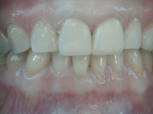 Bonding Worn or Damaged Teeth