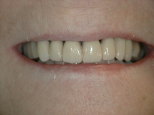 Removable Partial Denture Services