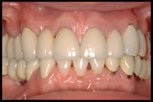 Management & Restoration of complex or failing dentitions