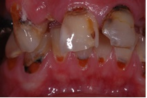 Severe effects of prolonged dry mouth