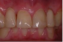 Dentist Dublin 18, Dentist Sandyford