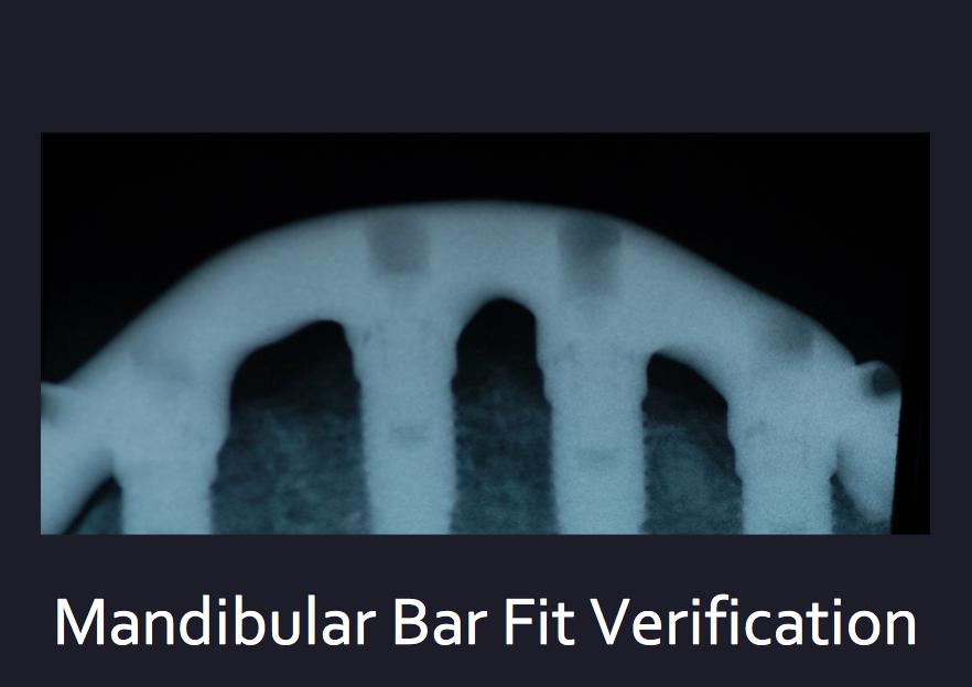 Dental Services Sandyford Dublin, Dentist Dublin 18