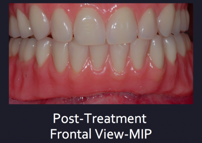 Complex Denture Treatment