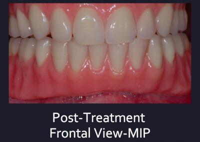 Complex Denture Treatment