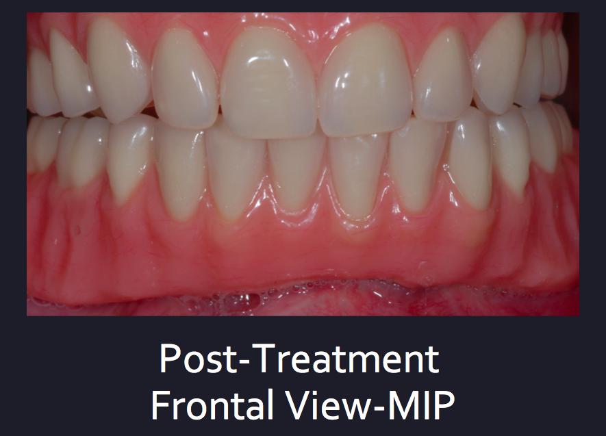 Complex Denture Treatment Dublin 18, Denture Implants, Denture Fix Dublin