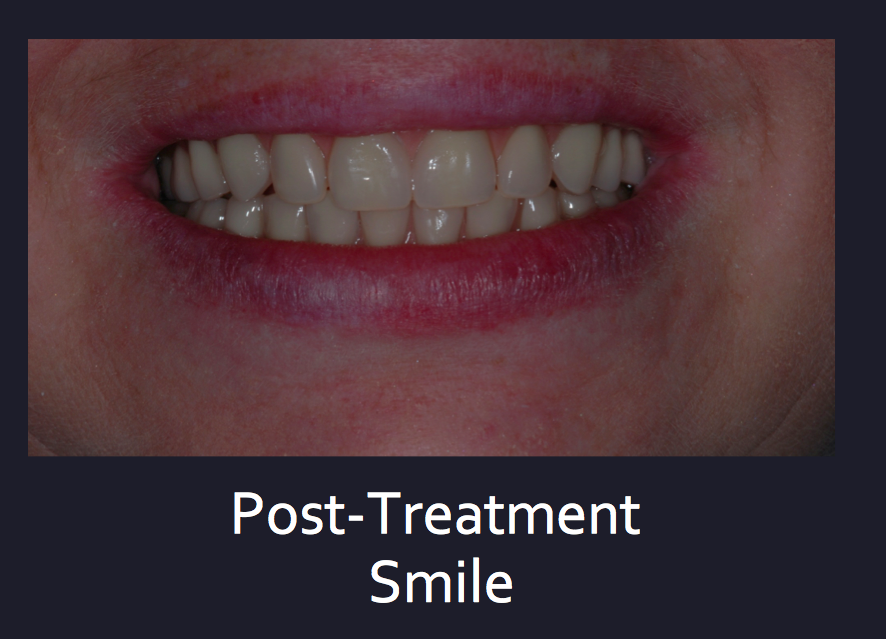 Dental Services Dublin, Dentist Dublin 18